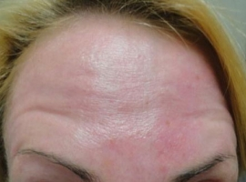 after-microdermabrasion-and-chemical-peel