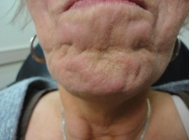 before-radiesse-and-botox-in-chin